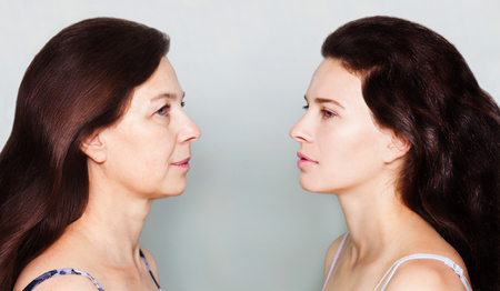 Foto de Beauty concept skin aging, anti-aging procedures, rejuvenation, lifting, tightening of facial skin, restoration of youthful skin anti-wrinkle. Before and after, mother and daughter - Imagen libre de derechos