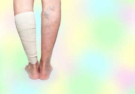 Legs. Varicose veins. Phlebeurysm. Thrombophlebitis. Elastic bandage