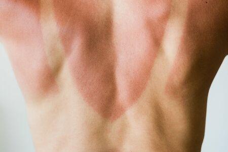 Photo pour Close-up of a sunburn marks on a woman's back - image libre de droit