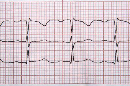 Photo pour Medical research. Fragment of a normal electrocardiogram with arrhythmia elements. - image libre de droit