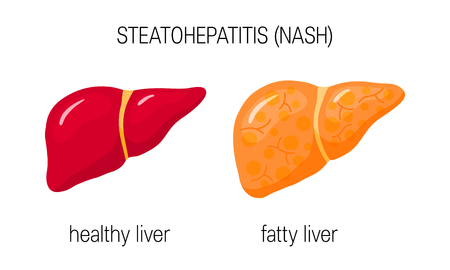 Illustration for Non-alcoholic steatohepatitis (NASH). Vector illustration of a healthy and a fatty liver in flat style - Royalty Free Image