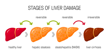 Illustration pour Stages of liver damage concept. Vector illustration of reversible and irreversible liver conditions in flat style - image libre de droit