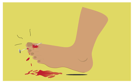 Nail piercing, foot injuries and blood flow.