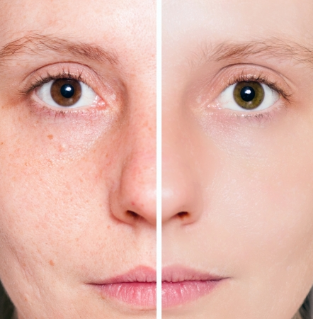 Photo pour Woman with spotty skin with deep pores and blackhead and healed soft skin  - image libre de droit