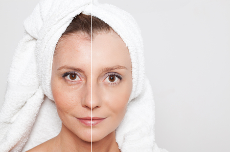 Beauty concept - skin care, anti-aging procedures, rejuvenation, lifting, tightening of facial skinの写真素材