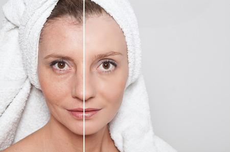 Foto de Beauty concept - skin care, anti-aging procedures, rejuvenation, lifting, tightening of facial skin - Imagen libre de derechos