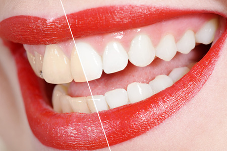 Photo pour before and after the tooth whitening - image libre de droit