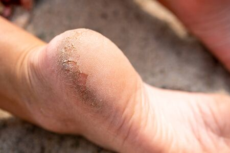 Photo for feet with damaged skin on the heels requiring the work of a beautician. skin requiring care - Royalty Free Image