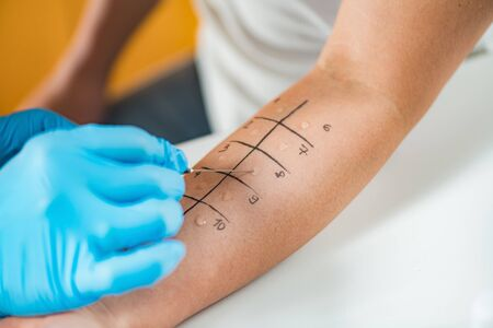 Photo for Immunologist Doing Skin Prick Allergy Test on a Woman's Arm - Royalty Free Image