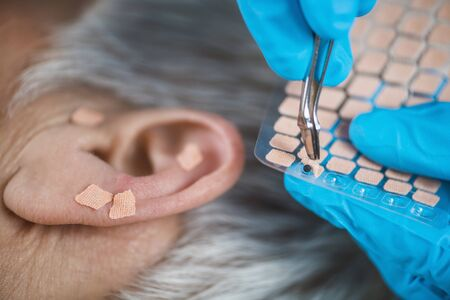 Photo pour Auriculotherapy, or auricular treatment on human ear, close up. Therapist hand applying acupuncture ear seed sticker with tweezers. - image libre de droit
