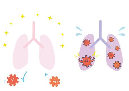 This is an illustration set of healthy lungs and viral-infected lungs. Vector image.