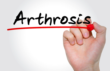 Hand writing inscription Arthrosis with marker, concept