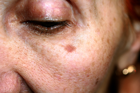 Photo pour Pigmentation on the face. Brown spot on cheek. Pigment spot on the skin. - image libre de droit