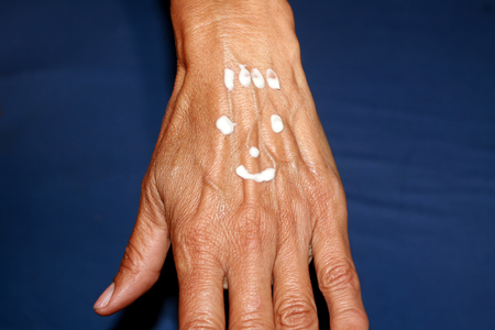 Photo pour Old hand. Arm with large bulging veins. Applying a healing cream on the hand in the form of a smile. - image libre de droit
