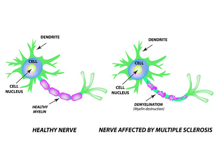 Illustration for The destruction of the myelin sheath on the axon. Damaged myelin. Neuron affected by multiple sclerosis. World Multiple Sclerosis Day. Infographics. Vector illustration on isolated background - Royalty Free Image