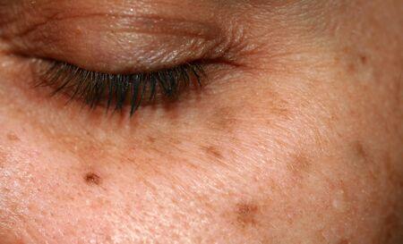 Photo pour Brown spots on the face. Pigmentation on the skin. Brown age spots on the cheek. - image libre de droit