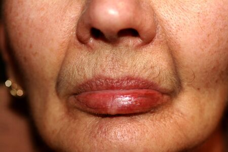 Photo pour Weathered lips. Fever on the lip. Herpes. - image libre de droit