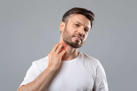 Photo pour Middle aged bearded man scratching highlighted with red neck on grey studio background, copy space. Annoyed man suffering from itch, having rash on his neck. Allergic reaction, eczema concept - image libre de droit
