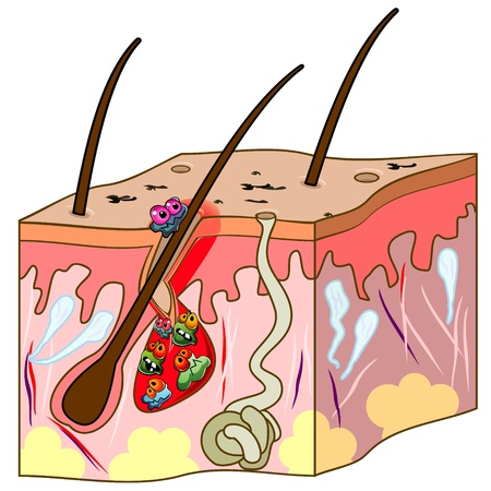 Skin section with hair and acne with cartoon germs