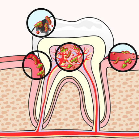 Scheme of tooth section with different damages and germs