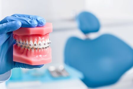 Foto de Closeup doctor male hand in gloves is holding jaw layout with metal braces. Blue dental chair with tools, instruments in clinic, office on background. Visit to dentist, orthodontist concept. - Imagen libre de derechos