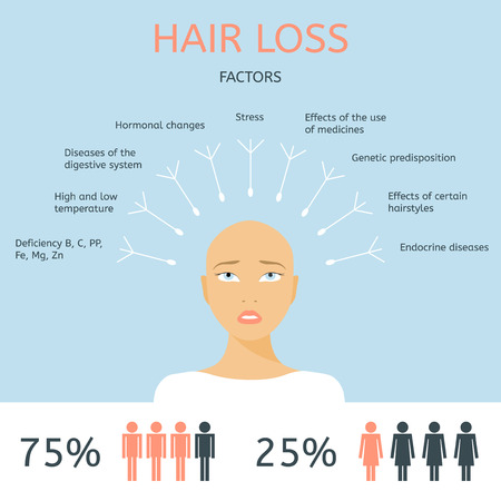 Illustration for Bald girl. Factors of hair loss. Alopecia infographics. - Royalty Free Image