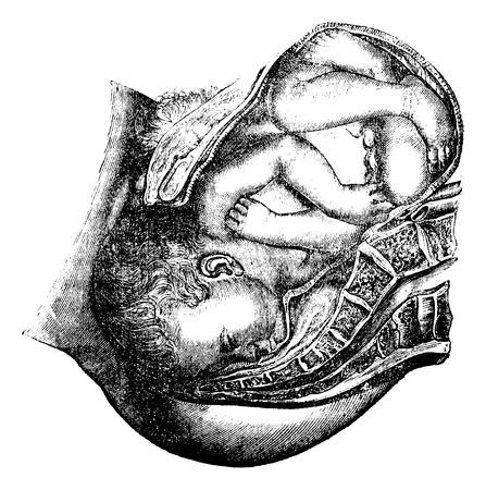 Illustration pour Delivery of the head, vintage engraved illustration. Magasin Pittoresque 1875. - image libre de droit