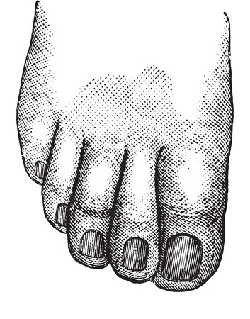 Faulty position of the big and second toe, vintage engraved illustration. Usual Medicine Dictionary - Paul Labarthe - 1885.