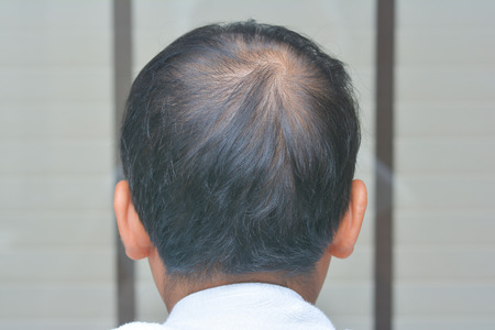 The Man is lose one's hair, bald head