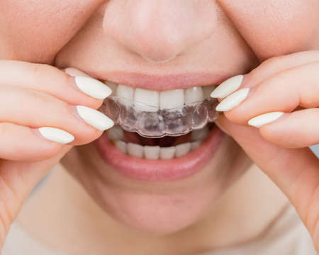 Photo pour Close-up portrait of a woman putting on a transparent plastic retainer. A girl corrects a bite with the help of an orthodontic device - image libre de droit