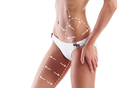 Photo pour Female body with the drawing arrows on it isolated on white. Fat lose, liposuction and cellulite removal concept. - image libre de droit
