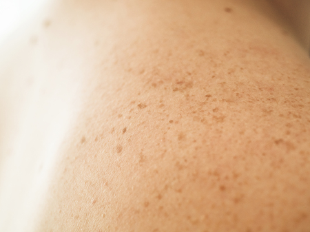 Photo pour Close up detail of the bare skin on a man back with scattered moles and freckles. Checking benign moles. Sun effect on skin. Birthmarks on skin - image libre de droit
