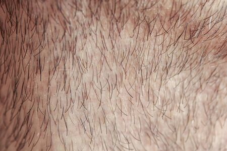 Photo pour background with male neck skin texture covered with fine and coarse hairs and bristles and scales - image libre de droit