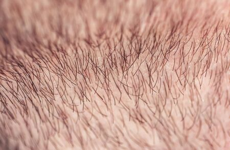 Photo pour background with a man's chin skin texture covered with fine and coarse hairs and bristles and scales - image libre de droit
