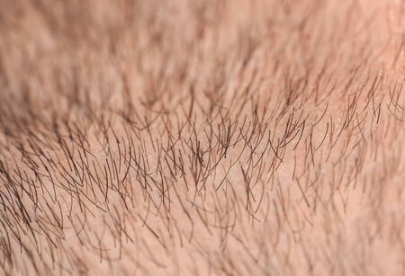 Photo pour background with the texture of the face skin close up of a man covered with stiff hairs and bristles of different lengths and colors - image libre de droit