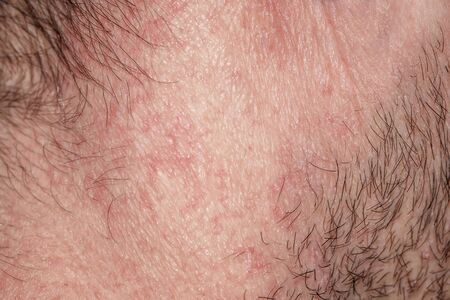 Photo pour  texture of irritated reddened male neck skin covered with hair and bristles - image libre de droit