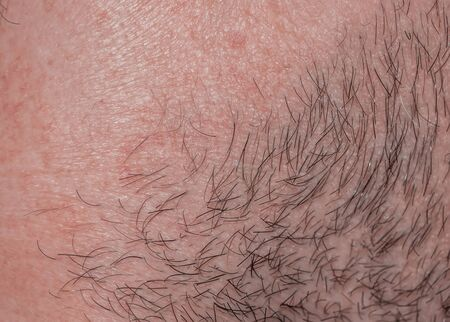 Photo pour background with the texture of irritated reddened skin of a man's neck covered with hair and bristles - image libre de droit