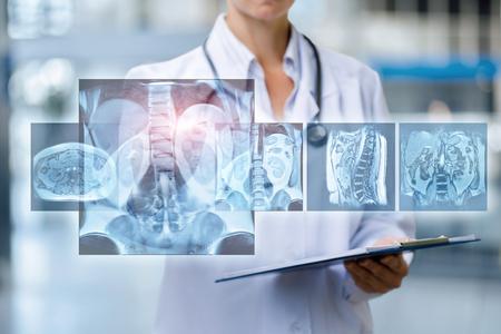 Foto de The doctor examines Magnetic resonance imaging on virtual screen. - Imagen libre de derechos