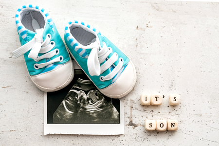 Foto de Blue baby booties with a picture of ultrasound for 20 weeks on a light background. Inscription its son - Imagen libre de derechos