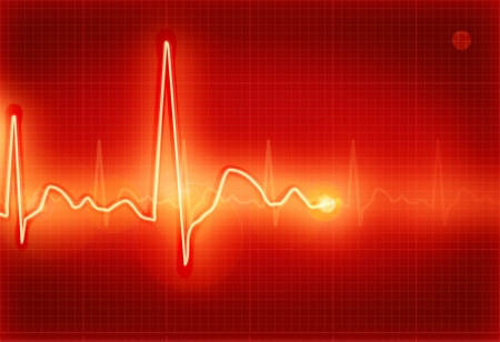 Electrocardiogram red