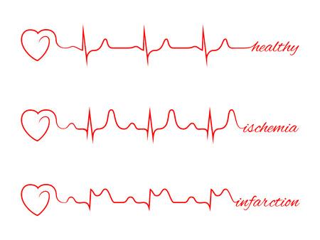 Heart beats various cardiogram set. Electrocardiogram and infarction pulse, line health, cardiology medicine illustration