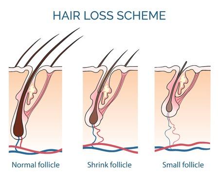 Illustration for Hair loss scheme. Loss hair, growth hair problem, health hair. Vector illustration - Royalty Free Image