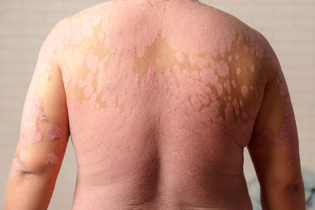 Photo pour Diseases caused by abnormalities of the lymph. Psoriasis is a skin disease. - image libre de droit