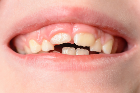 Photo pour The child opens wide mouths, showing his crooked teeth after falling of milk teeth 2019 - image libre de droit