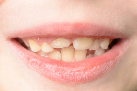 Photo pour Close-up of a small boy with curved teeth smiling 2019 - image libre de droit