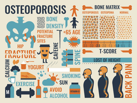 Illustration of osteoporosis infographic icon