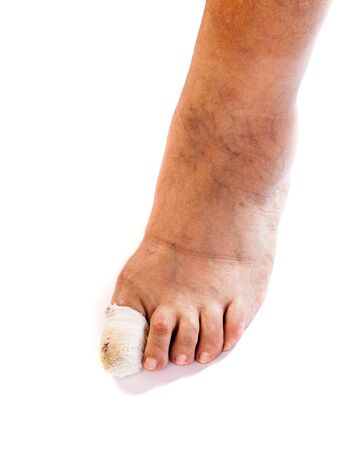 Photo pour Close up photo of bandaged injured toenail on isolated white background - image libre de droit