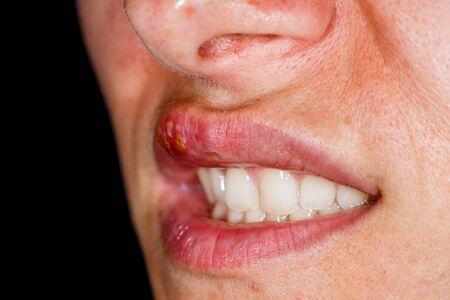 Photo pour Close up photo of oral herpes simplex virus infection - image libre de droit