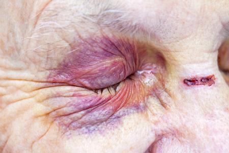 Photo pour Close up picture of an elderly woman's injured eye & face - domestic violence - image libre de droit