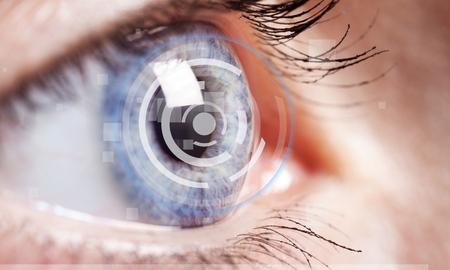 Photo for Cataract, eye, vision. - Royalty Free Image